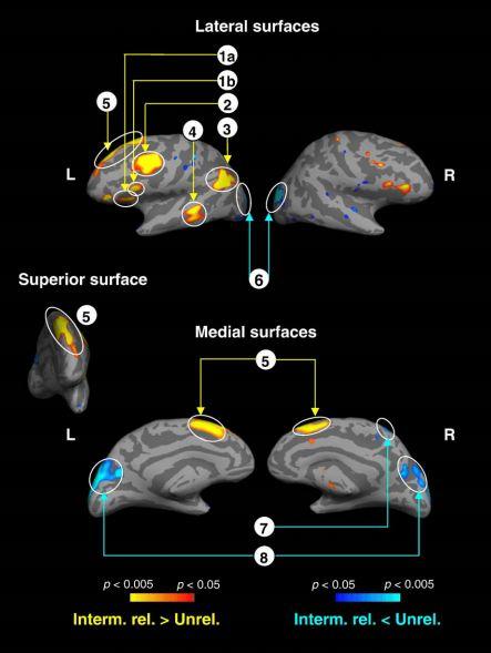 Semi-gratuitous Pretty Brain Pictures